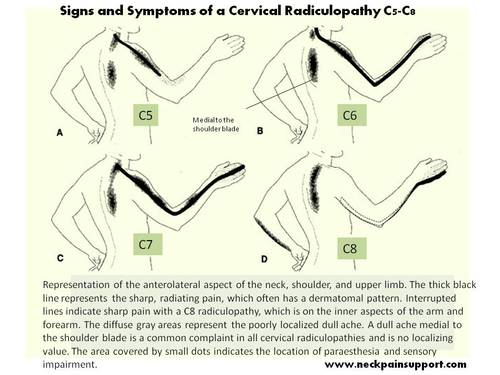 Signs_and_symptoms_of_a_cervical__2